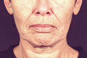 Laser Facial Resurfacing Darmabraision(Before)
