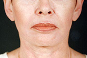 Laser Facial Resurfacing Darmabraision(After)